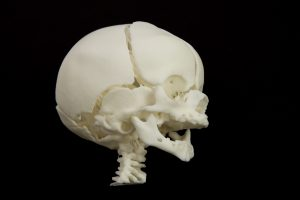 3D Printed Anatomical models for surgery preparation